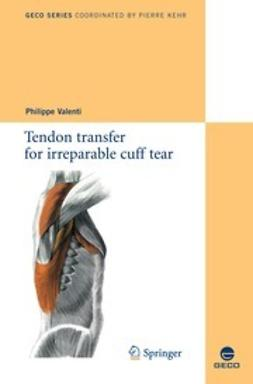 Valenti, Philippe - Tendon transfer for irreparable cuff tear, ebook