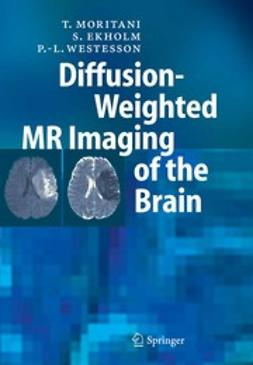 Moritani, T. - Diffusion-Weighted MR Imaging of the Brain, e-kirja
