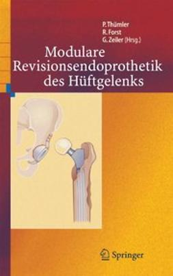 Forst, Raimund - Modulare Revisionsendoprothetik des Hüftgelenks, ebook