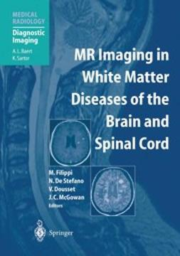 Dousset, Vincent - MR Imaging in White Matter Diseases of the Brain and Spinal Cord, ebook