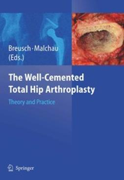 Breusch, Steffen - The Well-Cemented Total Hip Arthroplasty, ebook