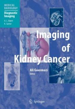 Imaging of Kidney Cancer