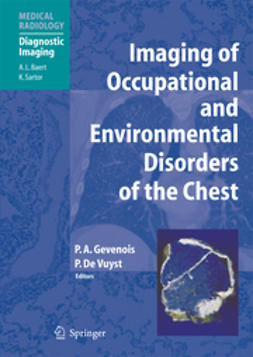 Gevenois, Pierre Alain - Imaging of Occupational and Environmental Disorders of the Chest, ebook