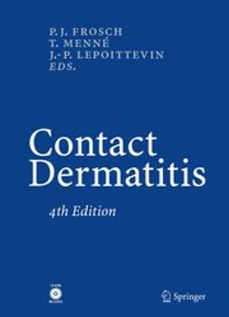 Frosch, Peter J. - Contact Dermatitis, ebook