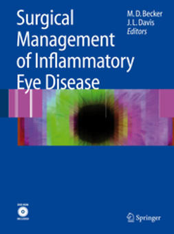 Becker, Matthias - Surgical Management of Inflammatory Eye Disease, ebook