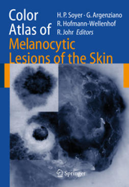 Argenziano, Guiseppe - Color Atlas of Melanocytic Lesions of the Skin, ebook