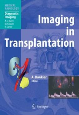 Bankier, Alexander A. - Imaging in Transplantation, ebook