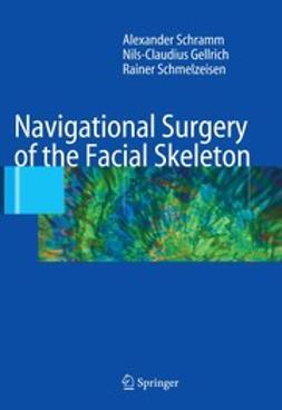 Gellrich, Nils-Claudius - Navigational Surgery of the Facial Skeleton, ebook