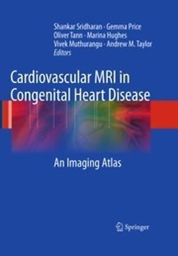 Sridharan, Shankar - Cardiovascular MRI in Congenital Heart Disease, e-kirja