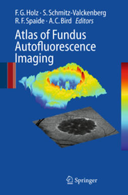 Bird, Alan C. - Atlas of Fundus Autofluorscence Imaging, ebook