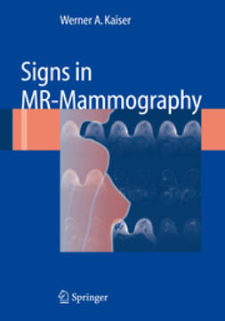Kaiser, Werner A. - Signs in MR-Mammography, ebook