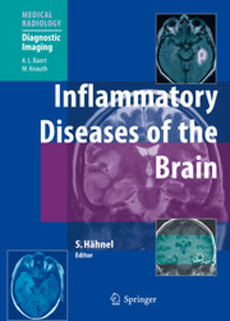 Hähnel, Stefan - Inflammatory Diseases of the Brain, ebook