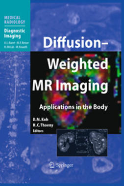 Koh, D. M. - Diffusion-Weighted MR Imaging, e-bok