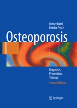Bartl, Reiner - Osteoporosis, ebook