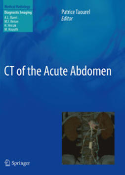 Taourel, Patrice - CT of the Acute Abdomen, e-kirja