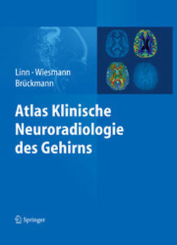 Linn, Jennifer - Atlas Klinische Neuroradiologie des Gehirns, e-bok