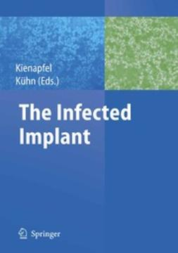 Kienapfel, Heino - The Infected Implant, e-bok