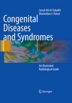 Al-Tubaikh, Jarrah Ali - Congenital Diseases and Syndromes, ebook