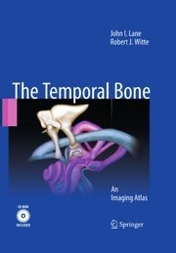 Lane, John I. - The Temporal Bone, ebook