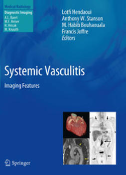 Hendaoui, Lotfi - Systemic Vasculitis, ebook