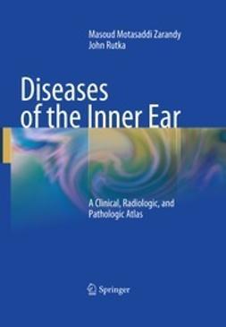 Zarandy, Masoud Motasaddi - Diseases of the Inner Ear, ebook