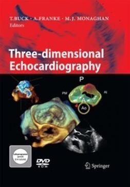 Buck, Thomas - Three-dimensional Echocardiography, ebook