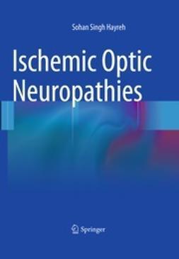 Hayreh, Sohan Singh - Ischemic Optic Neuropathies, ebook