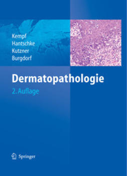 Kempf, Werner - Dermatopathologie, ebook