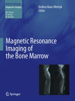 Baur-Melnyk, Andrea - Magnetic Resonance Imaging of the Bone Marrow, ebook