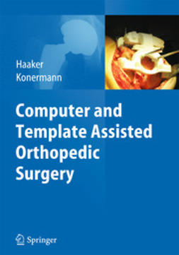 Haaker, Rolf - Computer and Template Assisted Orthopedic Surgery, ebook