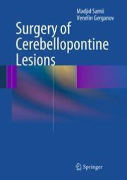 Samii, Madjid - Surgery of Cerebellopontine Lesions, ebook