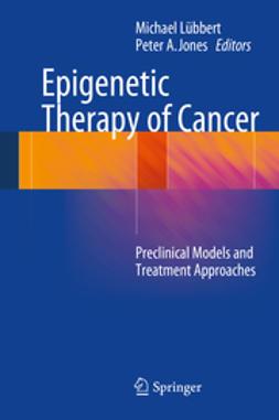 Lübbert, Michael - Epigenetic Therapy of Cancer, e-bok