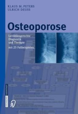 Deuss, Ulrich - Osteoporose, e-kirja