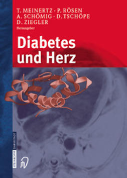 Meinertz, Thomas - Diabetes und Herz, ebook