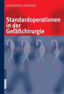 Frömke, Johannes - Standardoperationen in der Gefäßchirurgie, ebook