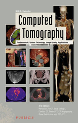 Kalender, Willi A. - Computed Tomography: Fundamentals, System Technology, Image Quality, Applications, ebook