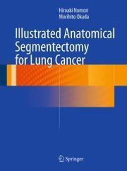 Nomori, Hiroaki - Illustrated Anatomical Segmentectomy for Lung Cancer, ebook