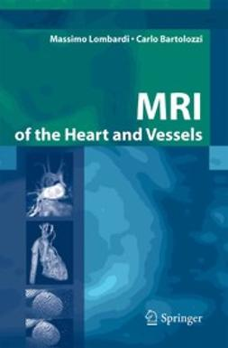 Bartolozzi, Carlo - MRI of the Heart and Vessels, e-kirja
