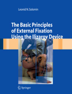 Solomin, Leonid N. - The Basic Principles of External Fixation Using the Ilizarov Device, ebook