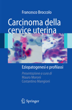 Broccolo, Francesco - Carcinoma della cervice uterina, ebook