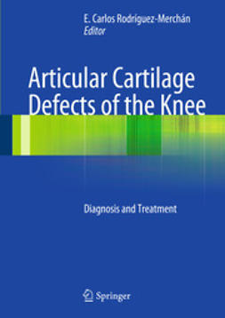 Rodrìguez-Merchán, E. Carlos - Articular Cartilage Defects of the Knee, ebook