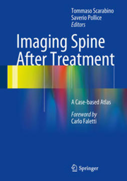 Scarabino, Tommaso - Imaging Spine After Treatment, ebook
