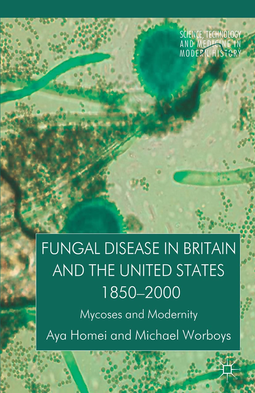 Homei, Aya - Fungal Disease in Britain and the United States 1850–2000, ebook