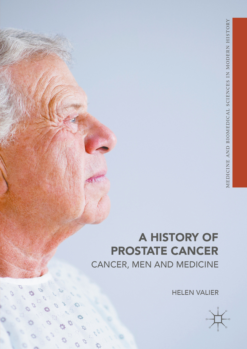 Valier, Helen - A History of Prostate Cancer, ebook