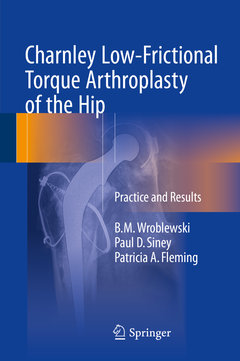 Fleming, Patricia A. - Charnley Low-Frictional Torque Arthroplasty of the Hip, ebook