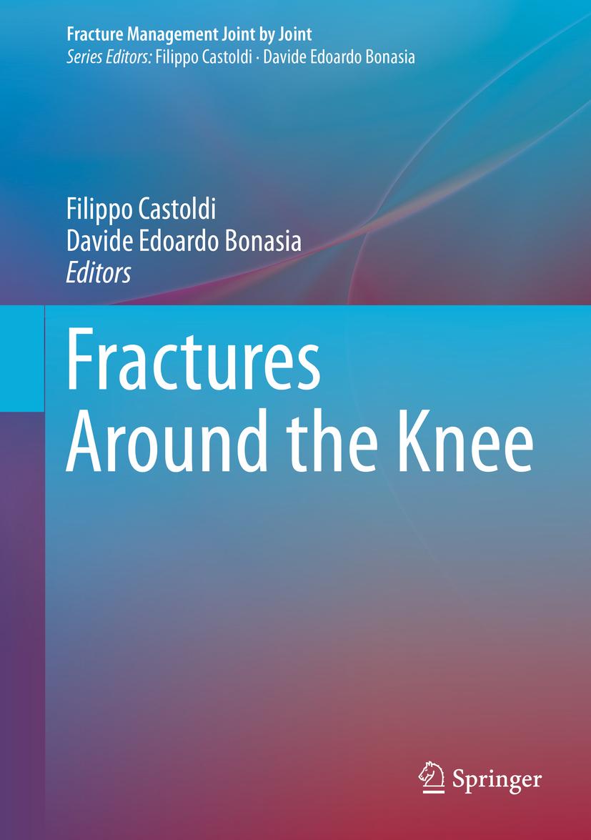 Bonasia, Davide Edoardo - Fractures Around the Knee, ebook