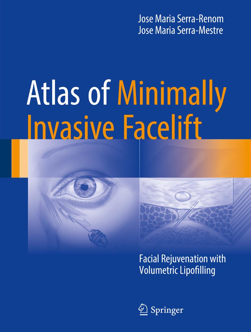 Serra-Mestre, Jose Maria - Atlas of Minimally Invasive Facelift, ebook
