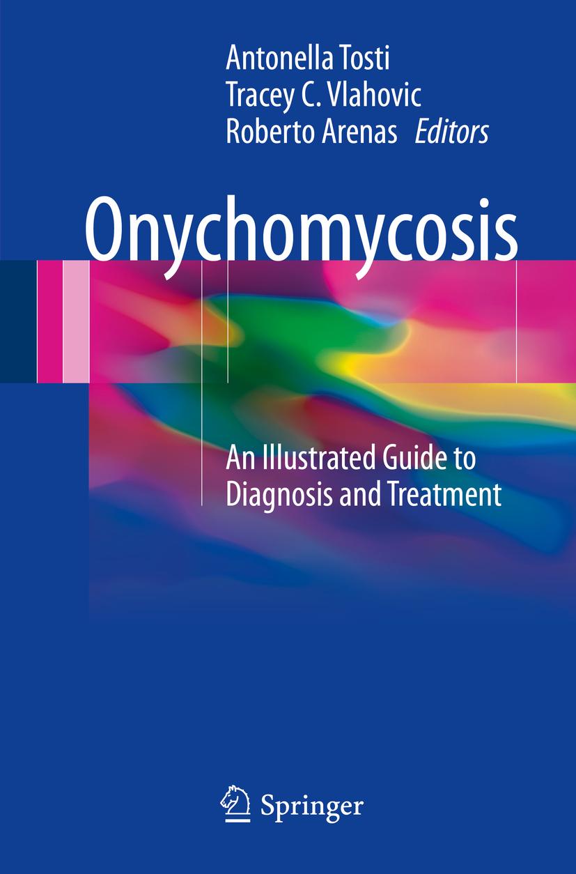 Arenas, Roberto - Onychomycosis, ebook