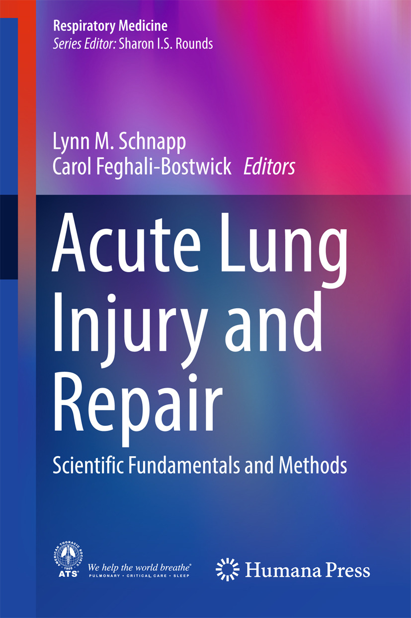 Feghali-Bostwick, Carol - Acute Lung Injury and Repair, ebook