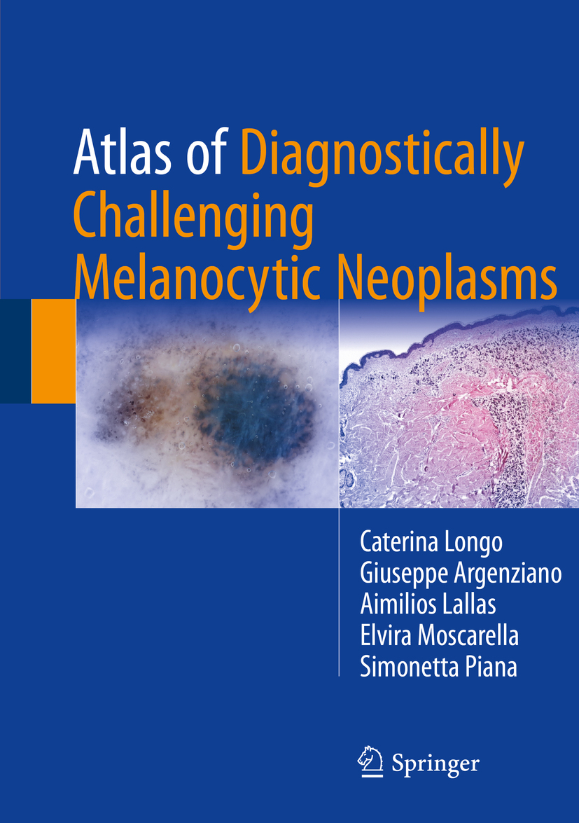 Argenziano, Giuseppe - Atlas of Diagnostically Challenging Melanocytic Neoplasms, ebook